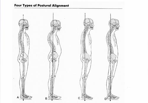 posture-problem_small